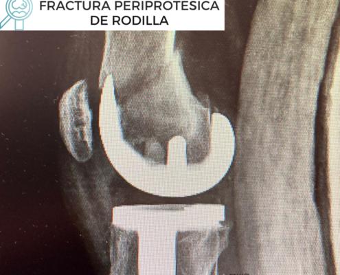fractura periprotésica de rodilla por el Dr. Lluís Puig Verdié