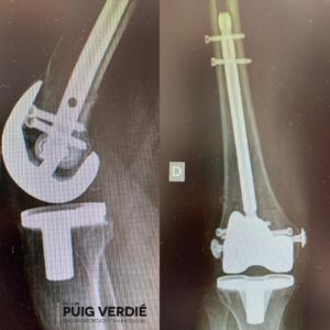 Caso fractura periprotésica de rodilla Dr. Lluís Puig Verdié