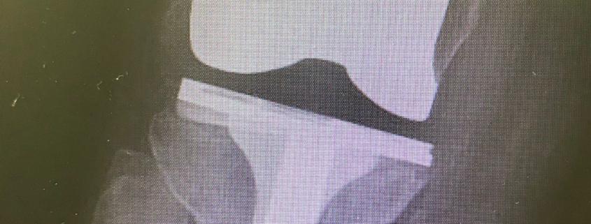 Prótesis de rodill dolorosa por el Dr. Lluís Puig Verdié traumatólog experto en cirugía de rodilla y protesis e infecciones